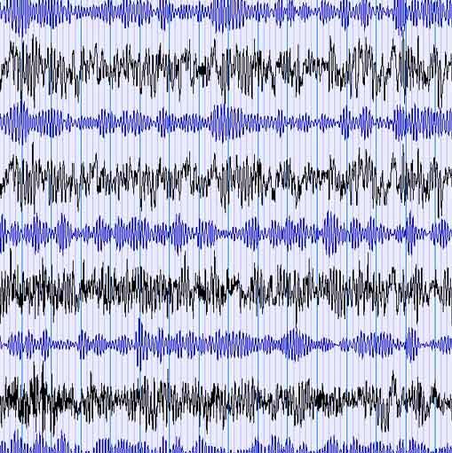 Brainwaves Matter