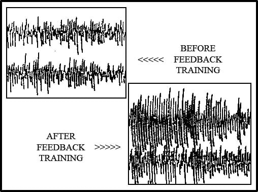 Before and After Feedback training